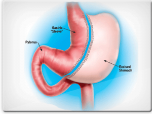 Gastric Sleeve Surgey