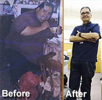 Raul |  RNY Gastric Bypass *