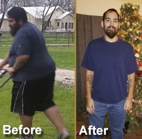 bariatric-surgery-in-san-antonio-phillip-long-composite