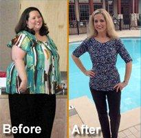 Dating After Bariatric Surgery Things Change