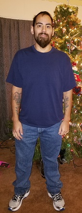 bariatric-surgery-in-san-antonio-phillip-long-after