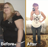 bariatric-surgery-san-antonio-mary-mckaskle-success-story