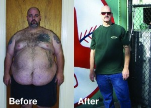 Men S Weight Loss Surgery Texas Bariatric Specialists
