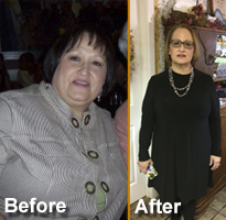bariatric-surgery-san-antonio-mary diaz