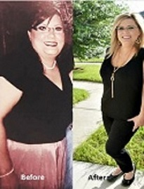 Medical-Weight_-Loss-Clinic- Success Story Theresa Keyser Composite