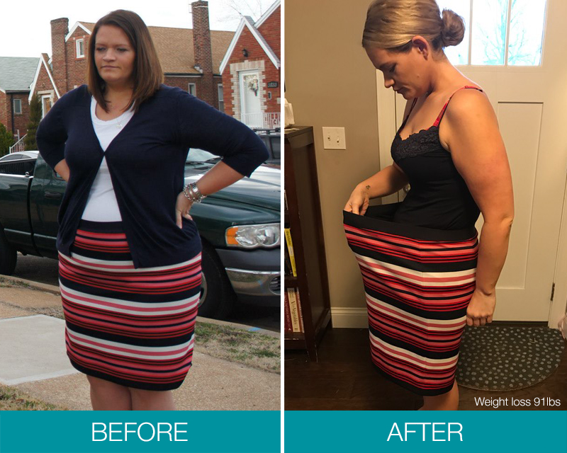 Balloon Weight Loss System Obalon Texas Bariatric Specialists