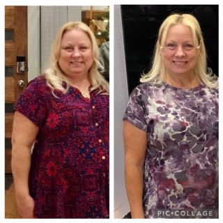 gastric sleeve surgery shiela success story